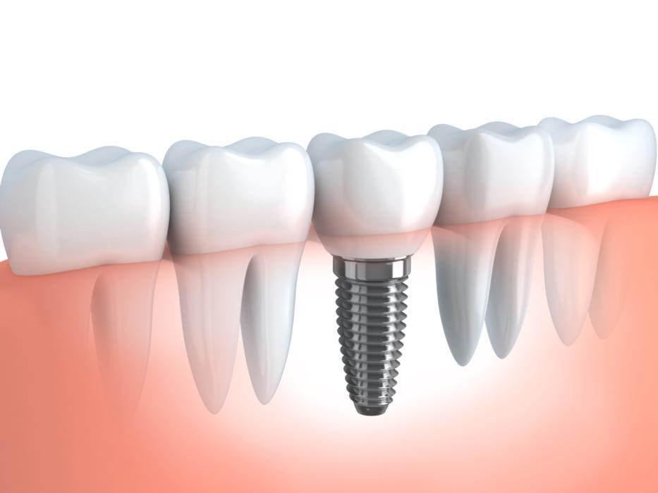 Dental Implants Diagram | Salem OR
