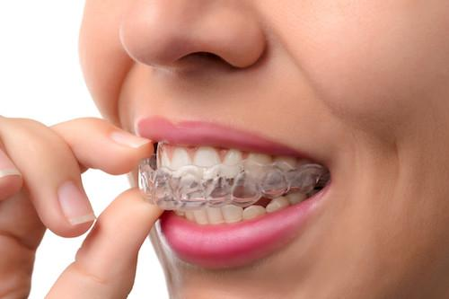 Invisalign | Salem, OR Dentist