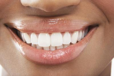 Dental Veneers | Salem, OR