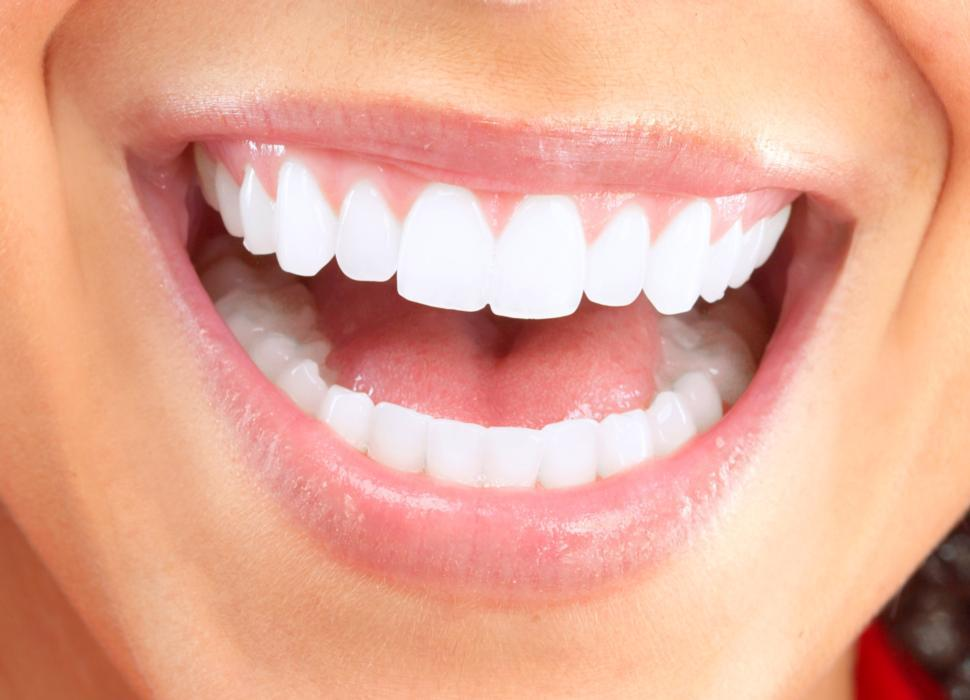 Teeth Whitening Salem OR