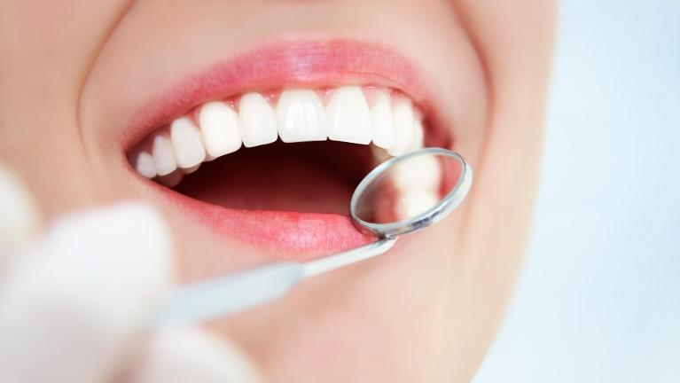 Dental Implants Salem OR